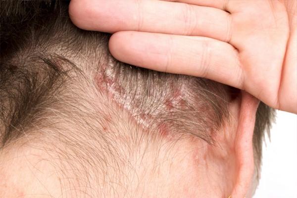 поврежденная-кожа-головы.jpg