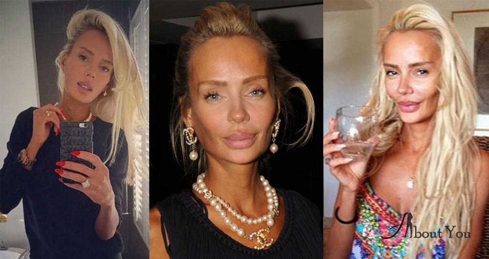 Кристина сысоева фото до и после пластики